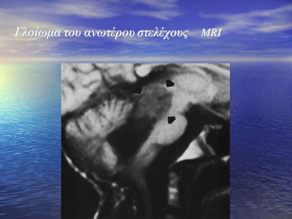 Γλοίωμα του ανωτέρου στελέχους MRI