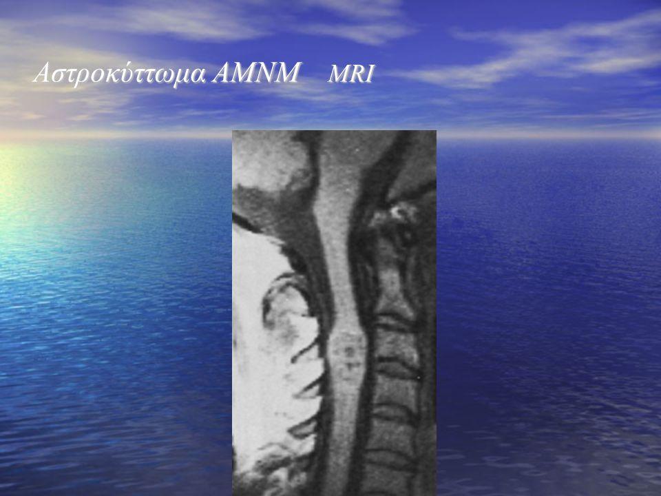 Αστροκύττωμα ΑΜΝΜ MRI