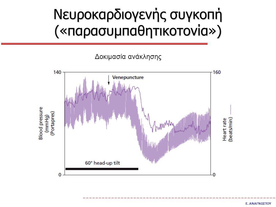 Νευροκαρδιογενής συγκοπή («παρασυμπαθητικοτονία»)