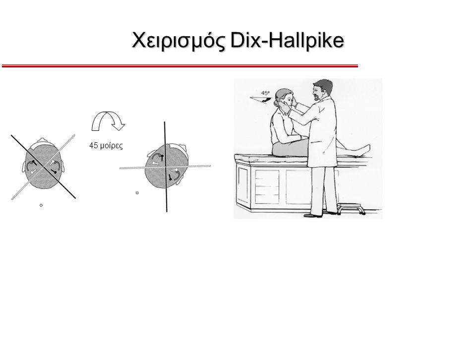 Χειρισμός Dix-Hallpike