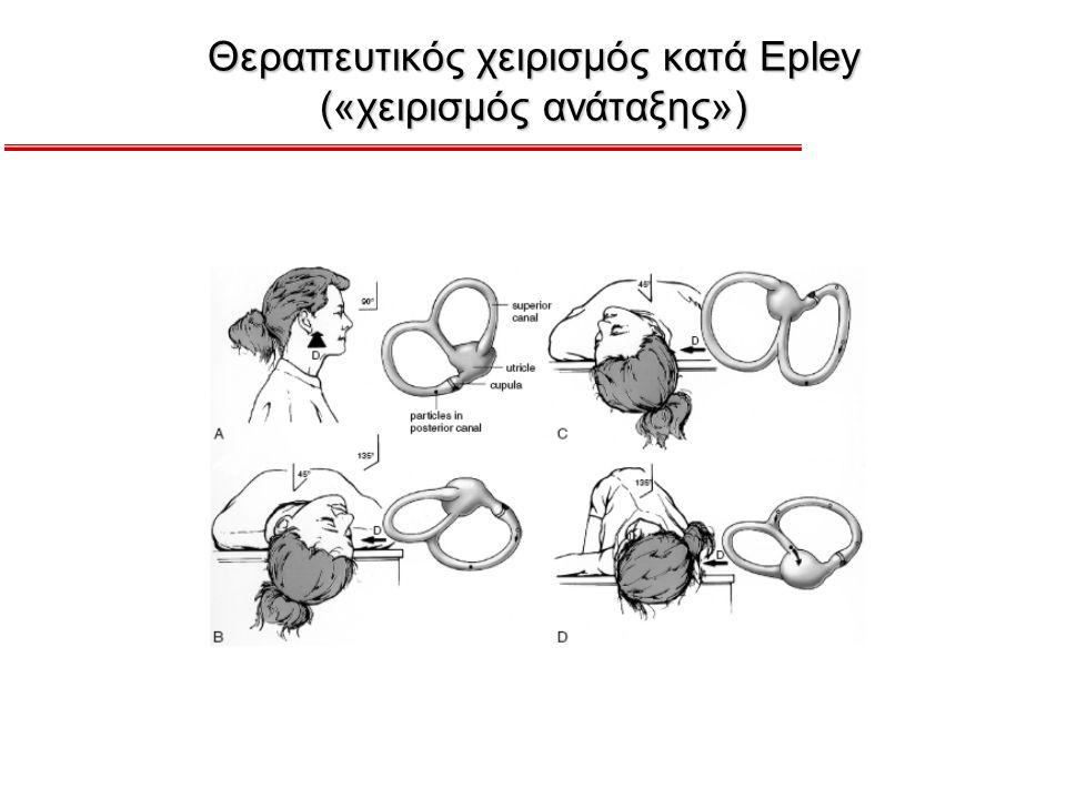Θεραπευτικός χειρισμός κατά Epley («χειρισμός ανάταξης»)