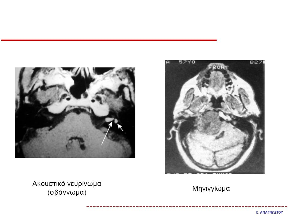 Ακουστικό νευρίνωμα (σβάννωμα)