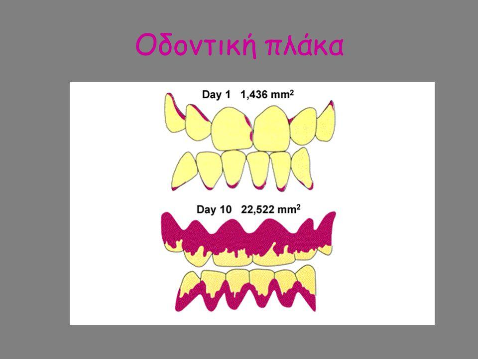 Οδοντική πλάκα