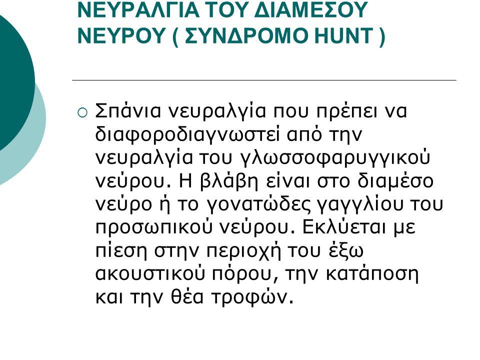 ΝΕΥΡΑΛΓΙΑ ΤΟΥ ΔΙΑΜΕΣΟΥ ΝΕΥΡΟΥ ( ΣΥΝΔΡΟΜΟ ΗUNT )