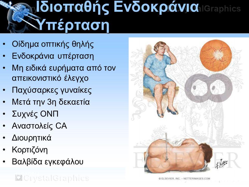 Ιδιοπαθής Ενδοκράνια Υπέρταση