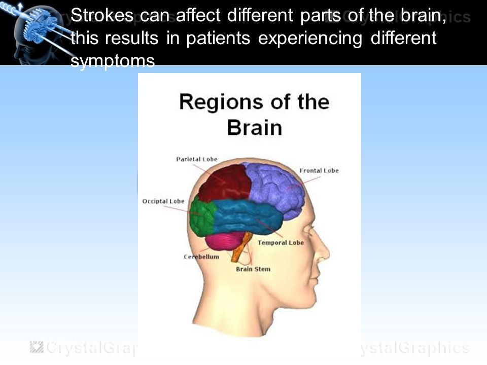 Strokes can affect different parts of the brain, this results in patients experiencing different symptoms