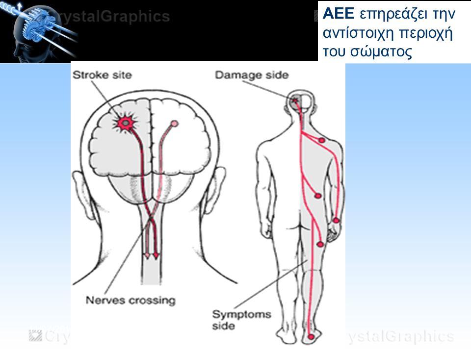ΑΕΕ επηρεάζει την αντίστοιχη περιοχή του σώματος