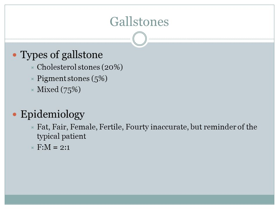 Gallstones Types of gallstone Epidemiology Cholesterol stones (20%)