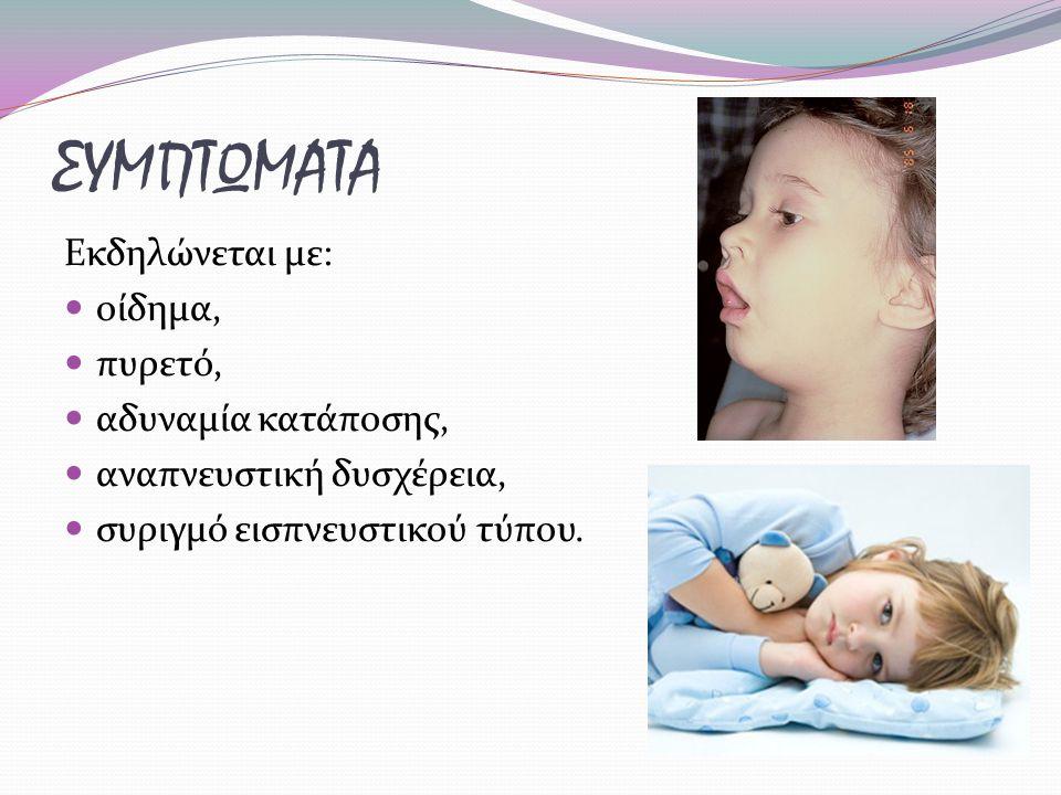 ΣΥΜΠΤΩΜΑΤΑ Εκδηλώνεται με: οίδημα, πυρετό, αδυναμία κατάποσης,