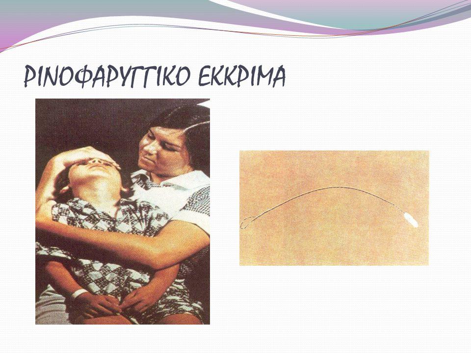 ΡΙΝΟΦΑΡΥΓΓΙΚΟ ΕΚΚΡΙΜΑ