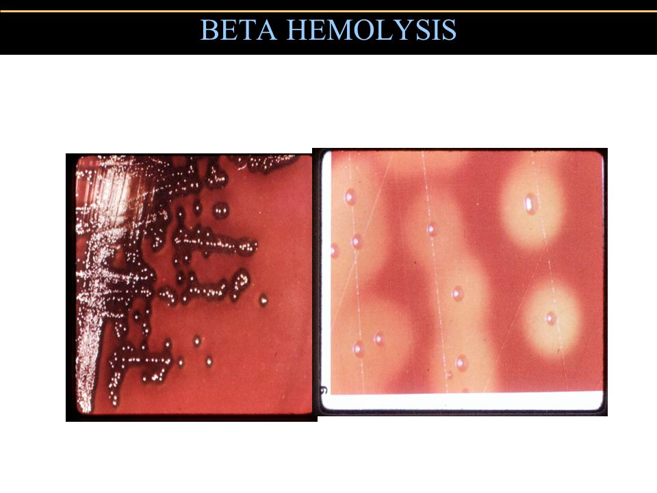 BETA HEMOLYSIS
