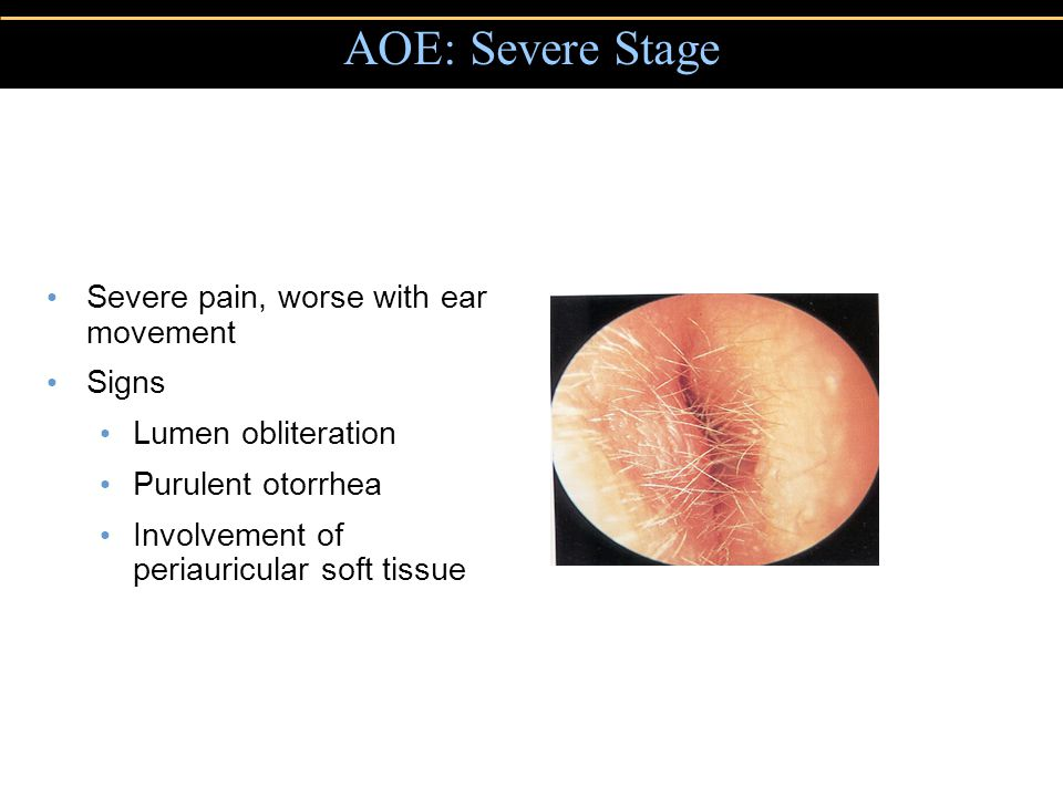 AOE: Severe Stage Severe pain, worse with ear movement Signs