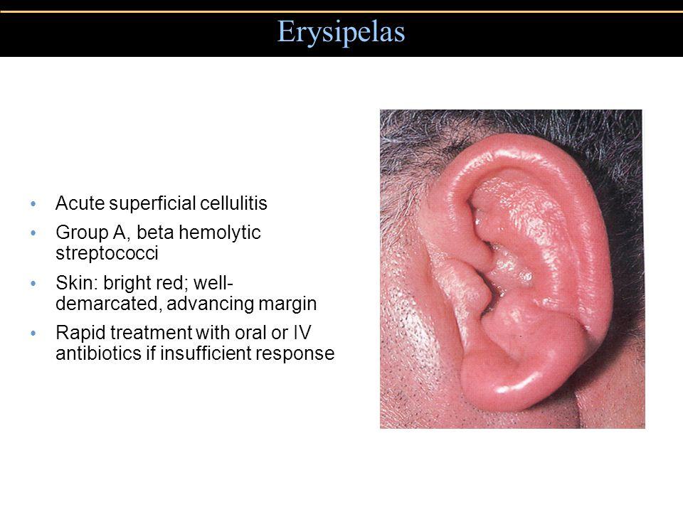 Erysipelas Acute superficial cellulitis