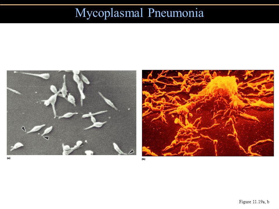 Mycoplasmal Pneumonia
