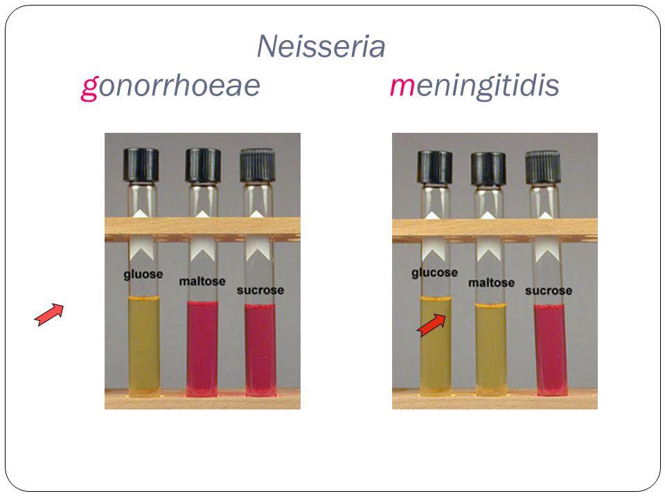 Neisseria gonorrhoeae meningitidis