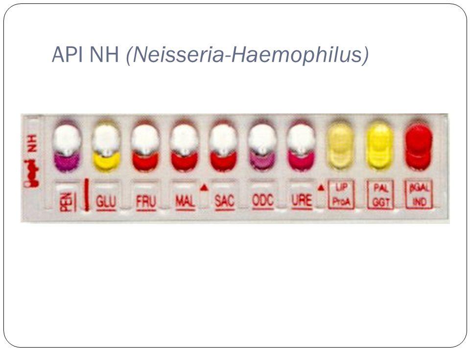 API NH (Neisseria-Haemophilus)
