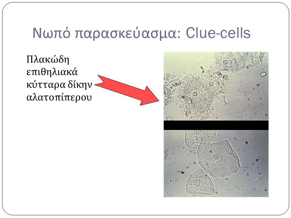 Νωπό παρασκεύασμα: Clue-cells