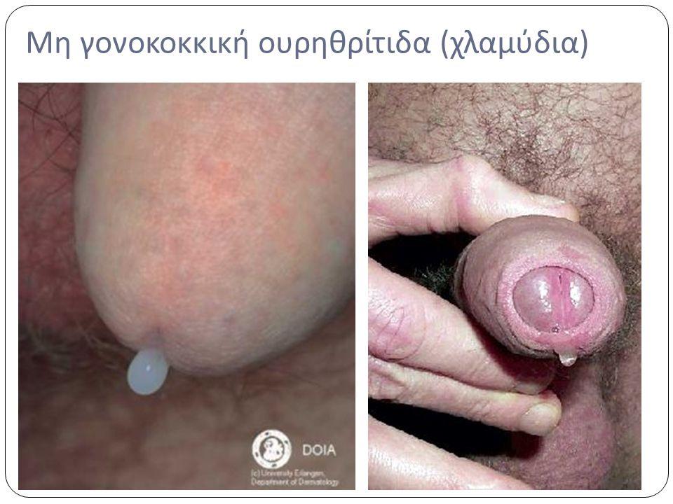 Μη γονοκοκκική ουρηθρίτιδα (χλαμύδια)