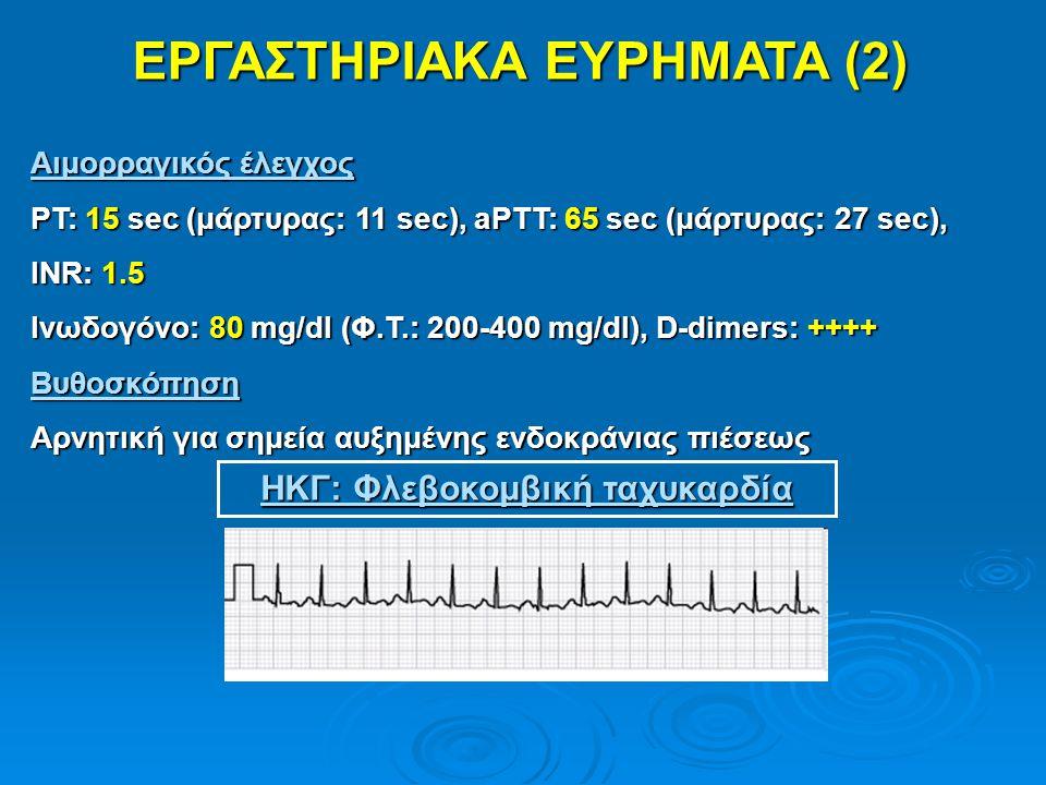 ΕΡΓΑΣΤΗΡΙΑΚΑ ΕΥΡΗΜΑΤΑ (2) ΗΚΓ: Φλεβοκομβική ταχυκαρδία