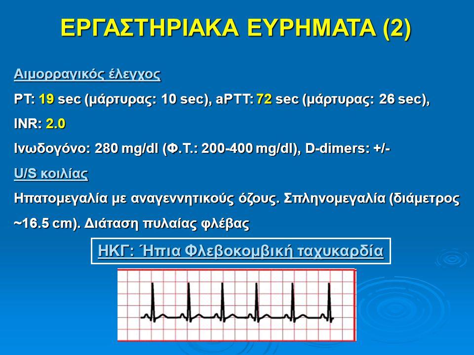 ΕΡΓΑΣΤΗΡΙΑΚΑ ΕΥΡΗΜΑΤΑ (2) ΗΚΓ: Ήπια Φλεβοκομβική ταχυκαρδία