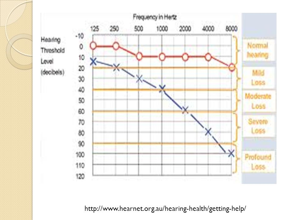 http://www.hearnet.org.au/hearing-health/getting-help/