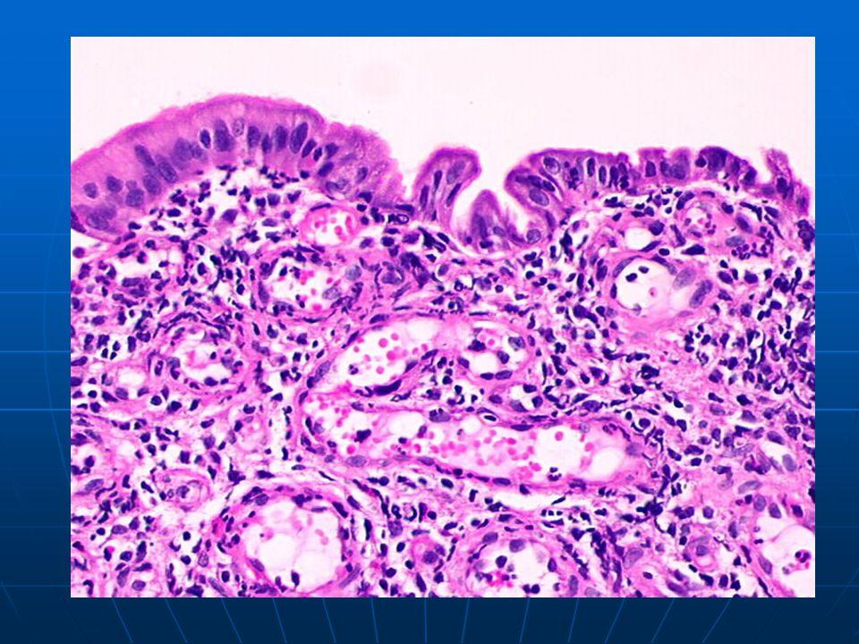 Non-specific subacute endocervicitis