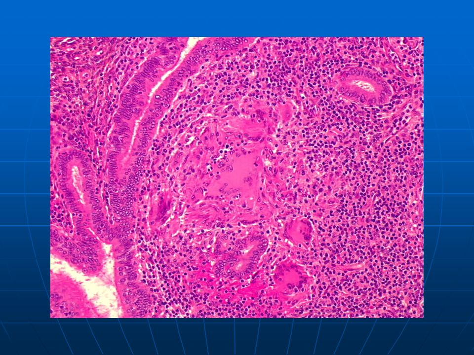 Endocervical tuberculosis: typical granuloma with palisading epithelioid cells and multinucleated Langhans giant cells.