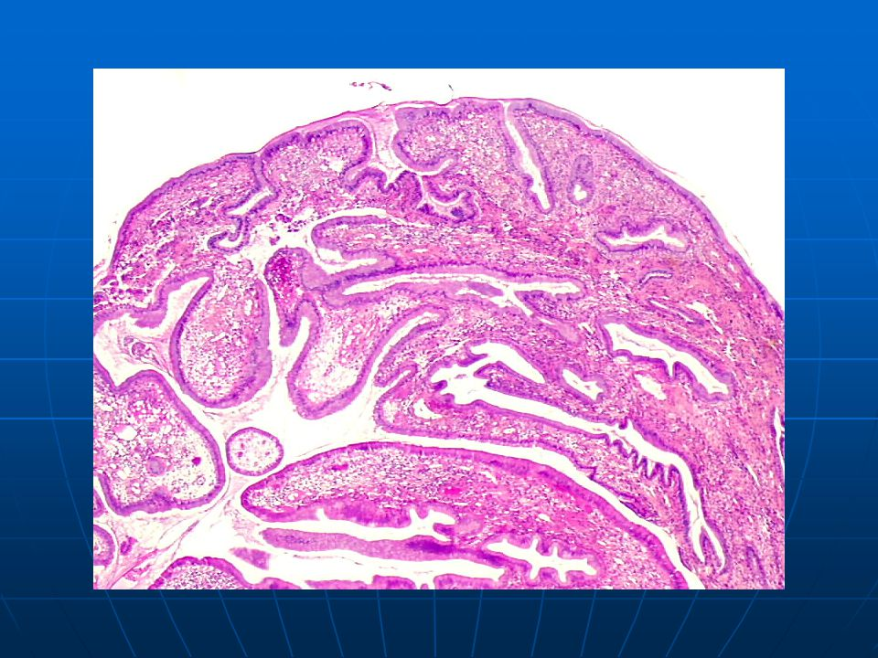 Endocervical polyp covered by a single layer of mucinous epithelium