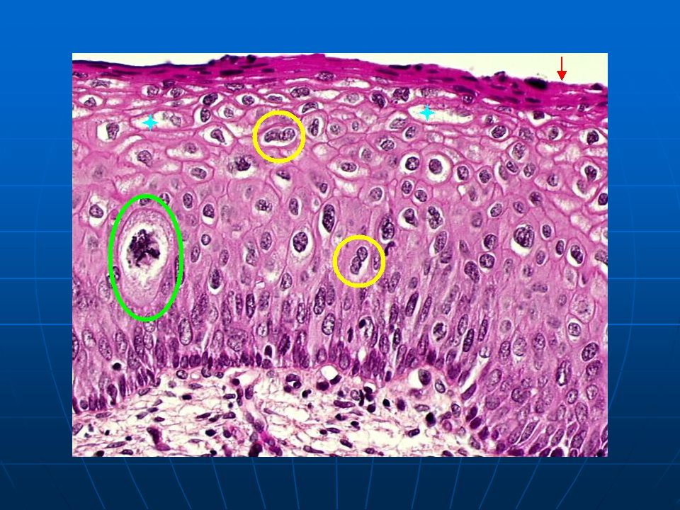 (flat condyloma): abnormal mitotic figure (green circle), numerous binucleated cells (yellow circle), koilocytotic cells (stars), superficial parakeratosis (red arrow).