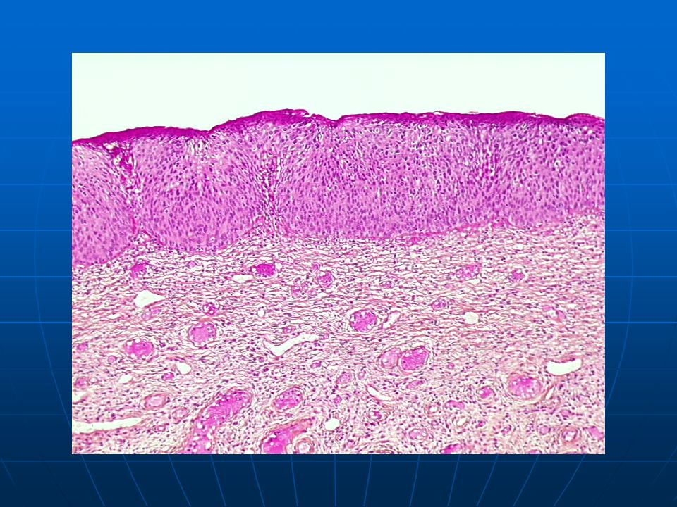 CIN 3 Cervical intraepithelial neoplasia grade 3 (Richart) is a preneoplastic lesion of squamous epithelium corresponding to previous severe dysplasia and squamous intraepithelial carcinoma.
