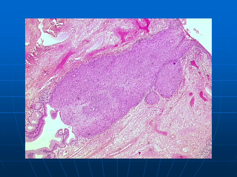 carcinoma in situ): endocervical glandular involvement.