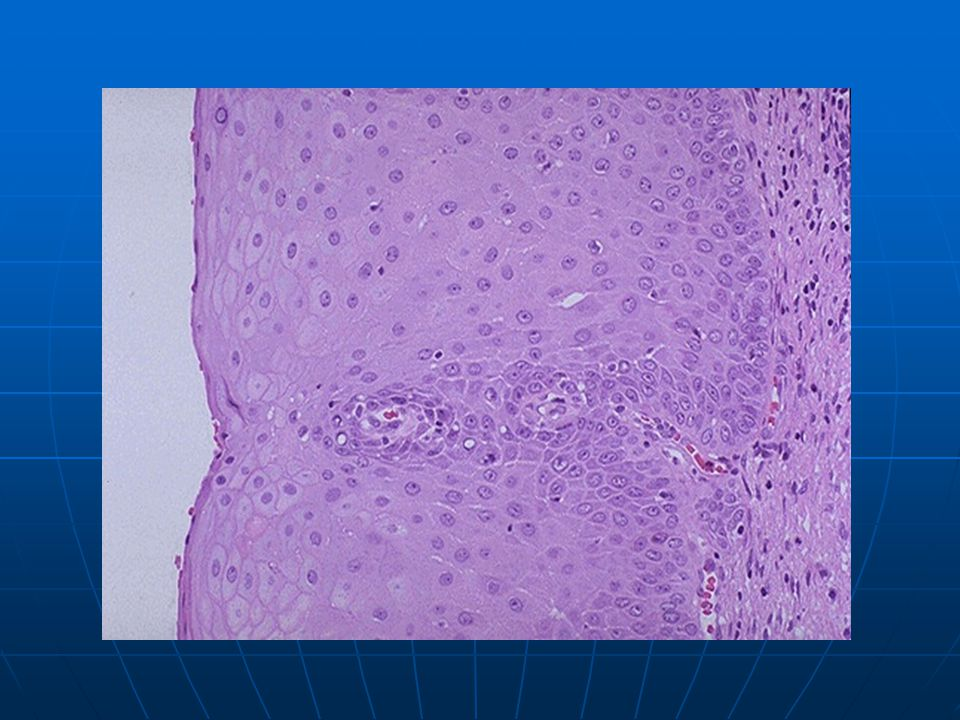 This is normal cervical non-keratinizing squamous epithelium