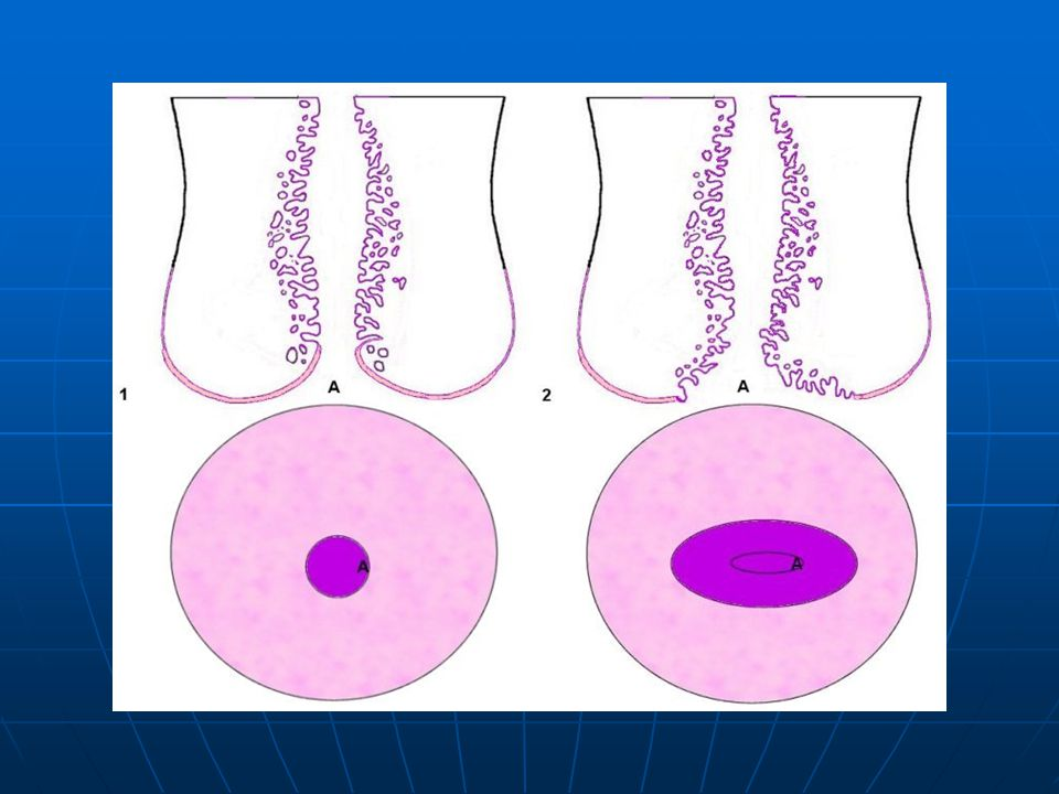 Micro anatomy of the uterine cervix: 1= Nulliparous, 2= Multiparous (A: external os, pink area = non keratinized squamous epithelium, purple area = glandular epithelium composed of one layer of mucin secreting and ciliated cells).
