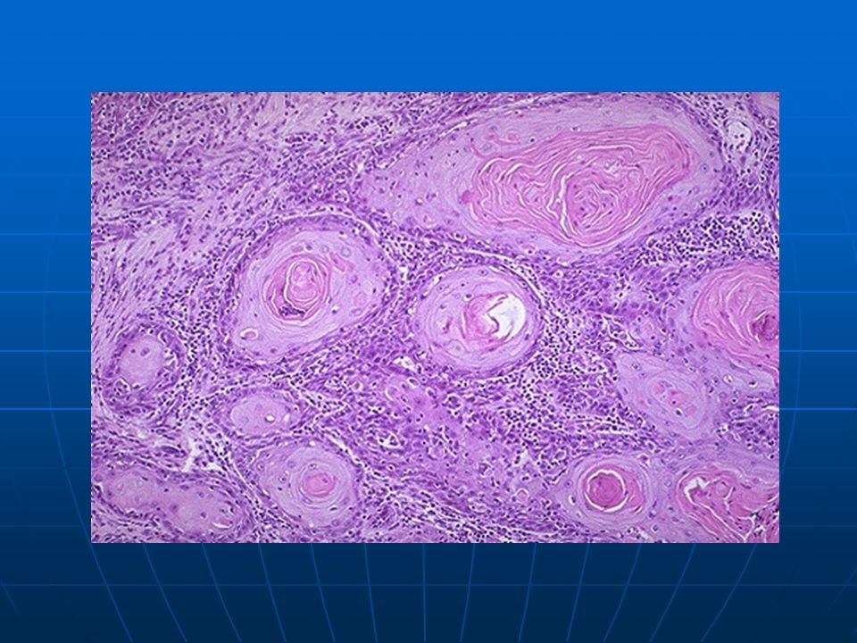 At high magnification, nests of neoplastic squamous cells are invaded through a chronically inflamed stroma.