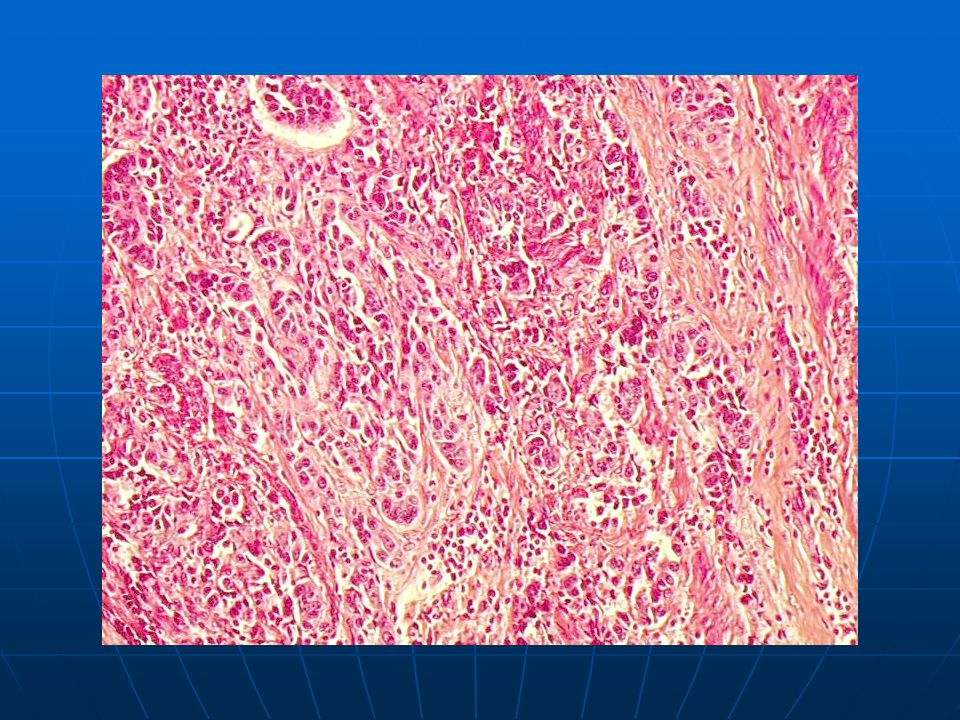 Poorly-differentiated invasive squamous cell carcinoma