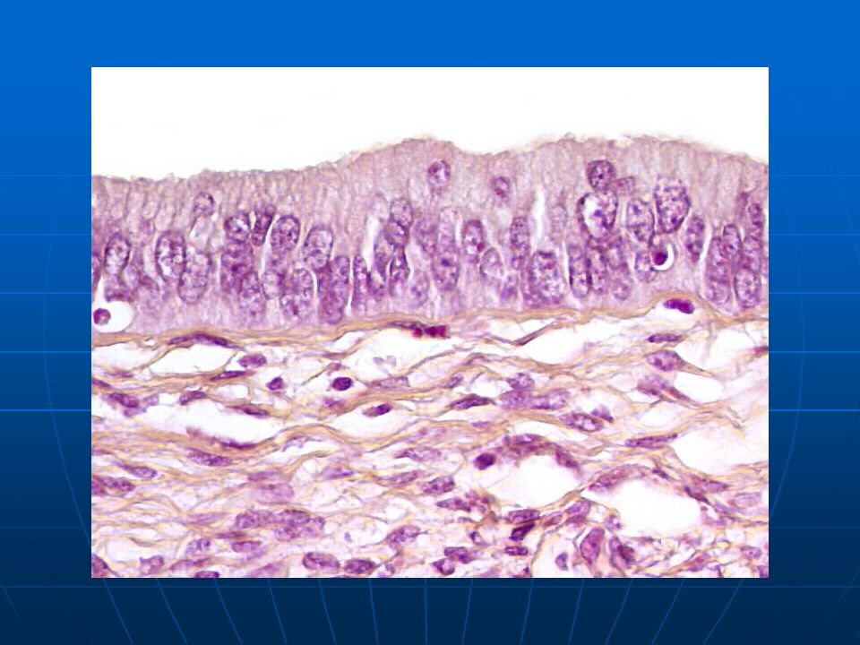 Pseudo-stratification of the endocervical epithelial nuclei associated with nuclear atypia.