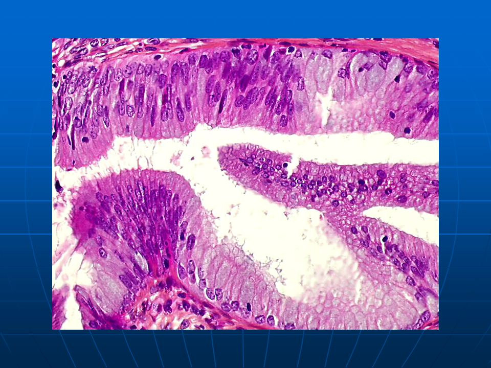 Moderate endocervical dysplasia: sharp transition between normal and dysplastic glandular epithelium