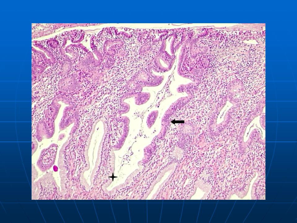 Adenocarcinoma in situ: sharp transition between normal (+) and neoplastic endocervical epithelium (arrow