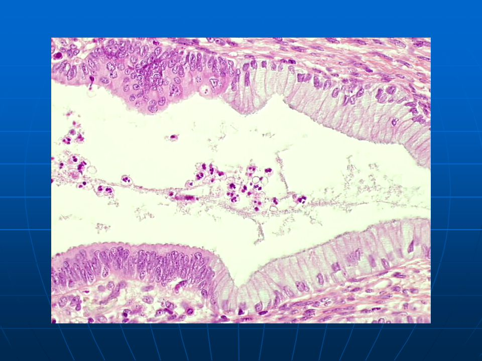 in situ (left) coexisting with normal endocervical epithelium (right).