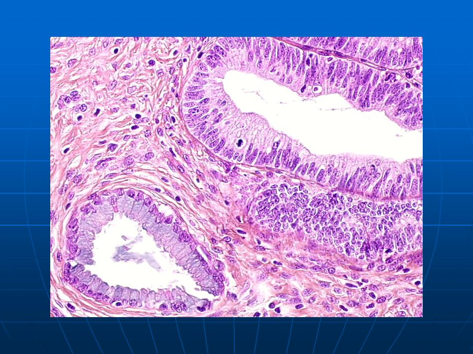 in situ: contrast between a normal gland (left) and a neoplastic gland (right).