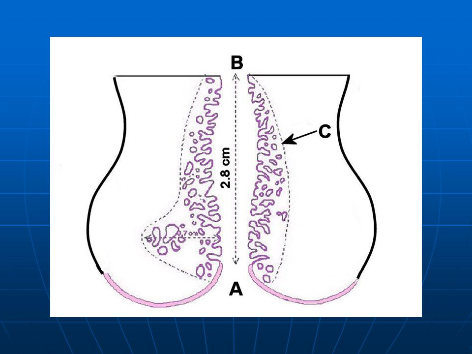 Distribution of the endocervical glands