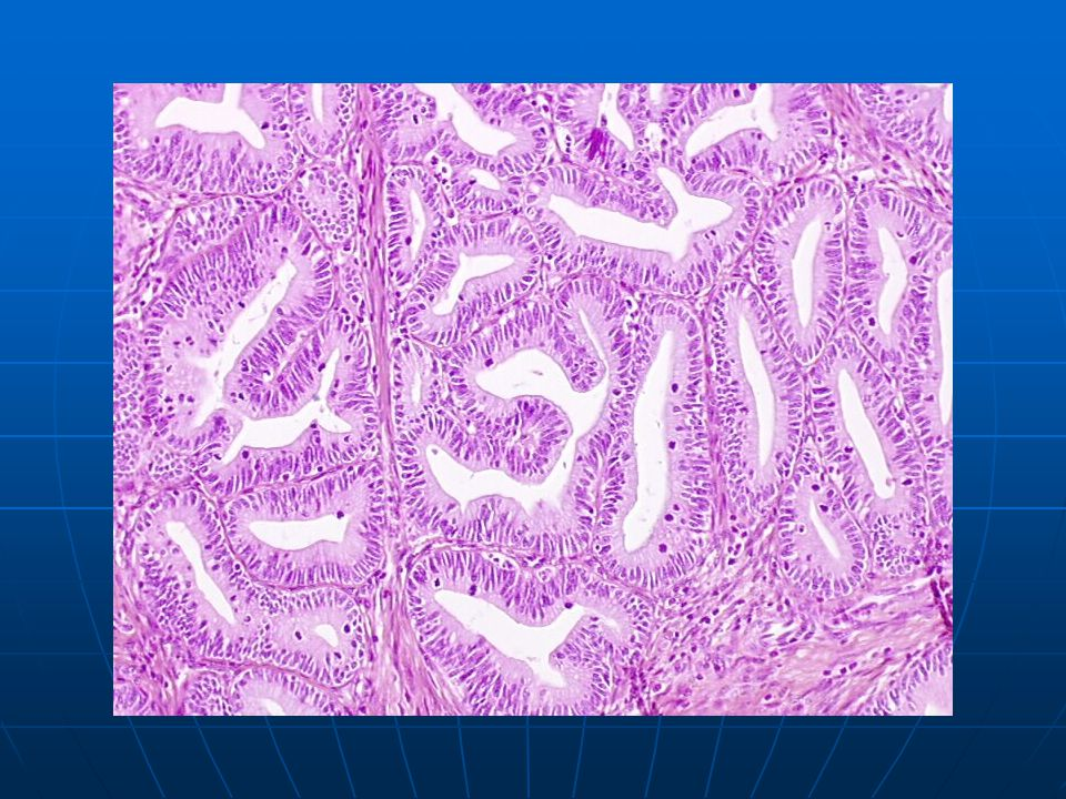 Well-differentiated invasive endocervical adenocarcinoma (grade I) composed of tubules (with multi-layered epithelium) which infiltrate the connective tissue.