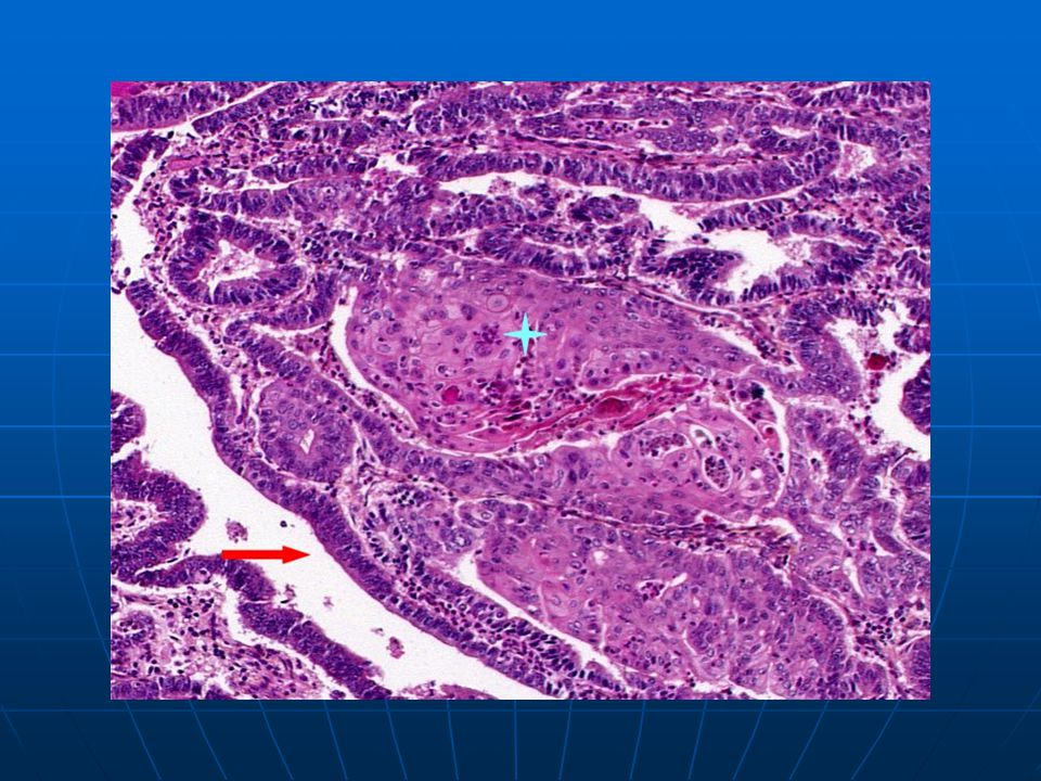 Carcinoma with malignant glandular (arrow) and squamous components (star).