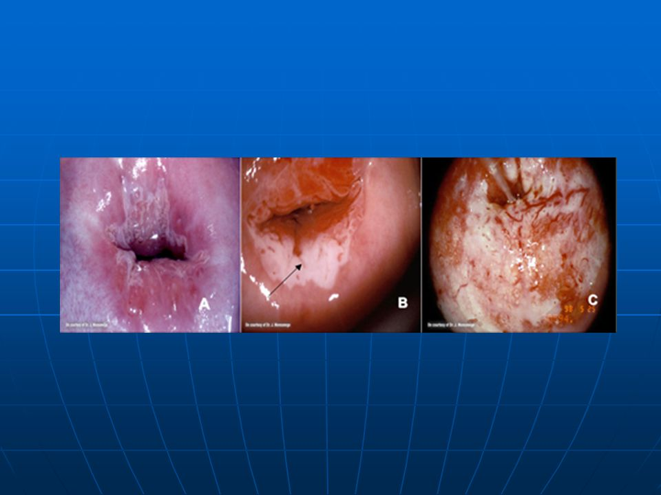 Colposcopy of a normal cervix (Panel A), cervix with acetowhitening with arrow denoting acetowhite area (Panel B), and a cervix with invasive carcinoma (Panel C).