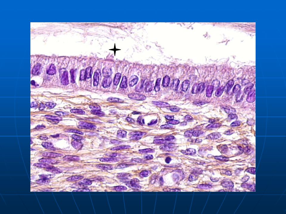 epithelium composed of one layer of mucin secreting cells with few ciliated cells (+).