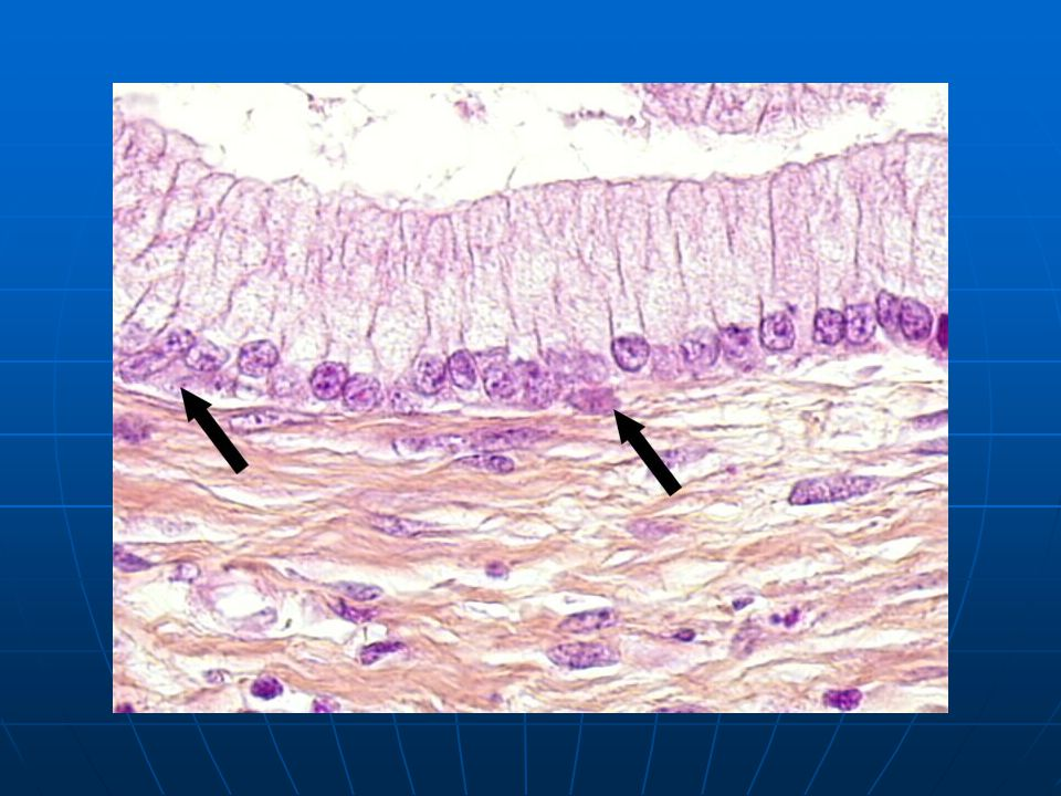 epithelium composed of one layer of mucin secreting cells with few reserve cells (arrow).