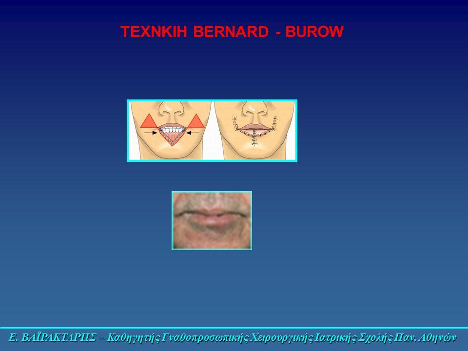 ΤΕΧΝΚΙΗ BERNARD - BUROW