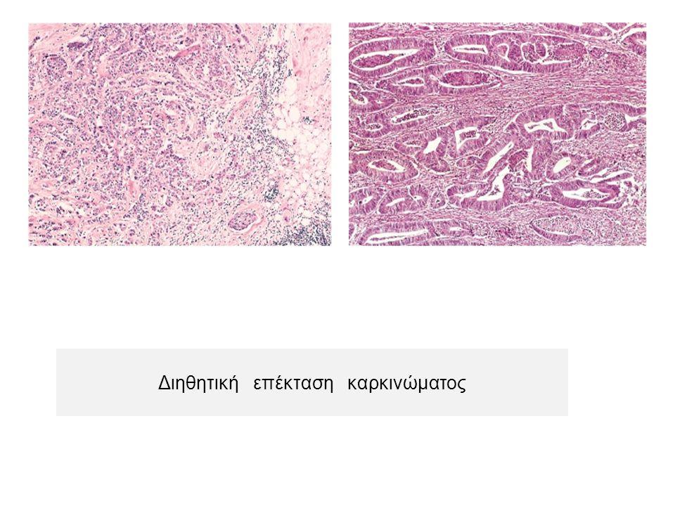 Διηθητική επέκταση καρκινώματος