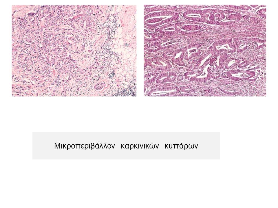 Μικροπεριβάλλον καρκινικών κυττάρων