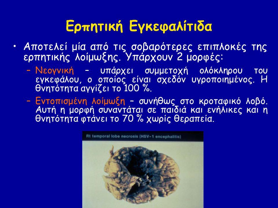 Ερπητική Εγκεφαλίτιδα